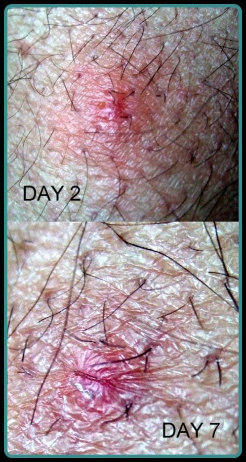 bird mite dermatitis